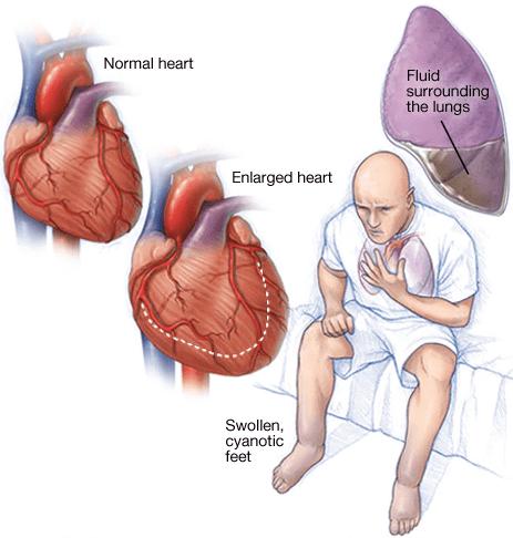 وقتی که عضله قلب نتواند خون را به اندازه کافی پمپ کند نارسایی قلبی رخ می دهد. در نارسایی قلبی علاوه بر عدم تامین احتیاجات بدن، خون پس می زند و باعث تجمع مایعات در ریه ها و پاهاتون می شود و پاها ورم می کند و به خاطر فقدان خون اکسیژنه لبها و ناخنها کبود و سیانوزه می شود. این تجمع مایع در ریه ها باعث تنگی نفس می شود. بعضی از انواع نارسایی قلبی منجر به بزرگ شدن قلب می شود.