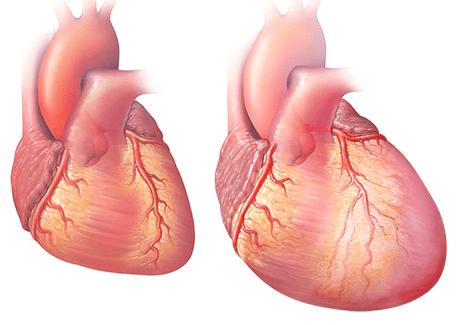 بزرگ شدن قلب در نارسایی قلبی. از آن جایی که قلب شما ضعیف می شود شروع به بزرگ شدن می کند که بتواند سخت تر کار کند و خون را به تمام بدن برساند.